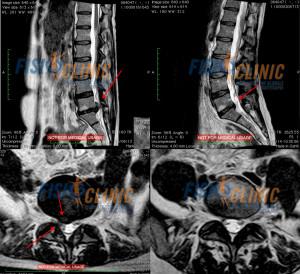 Fisioterapia Ernia lombare senza intervento risultato di trattamento