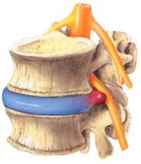 Ernia del disco lombare ernia del disco senza intervento