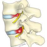 lumbar-hernia-physiotherapy ernia del disco senza intervento
