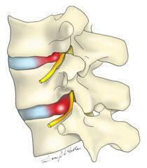 lumbar-hernia-physiotherapy