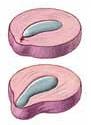 protusione lombare cervicale Fisioterapia