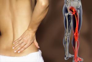 Muscolo Piriforme Sciatalgia