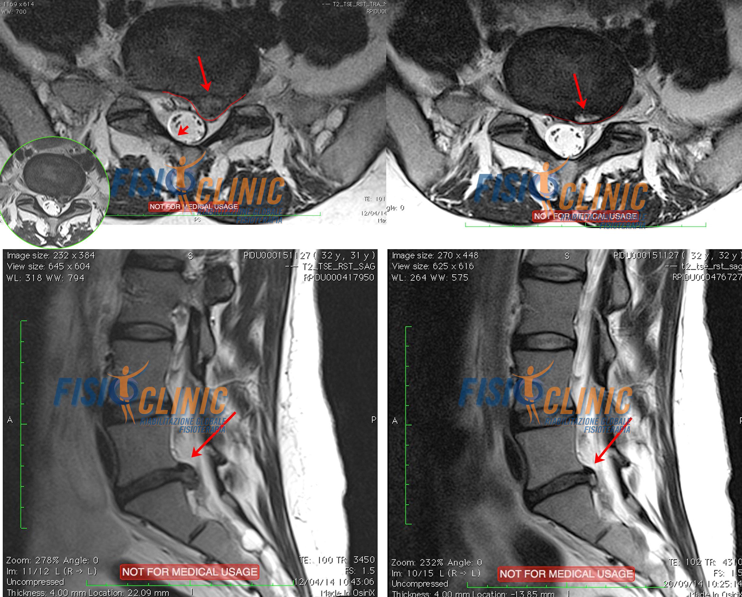 Trattamento ernia del disco lombare risultati fisioterapia
