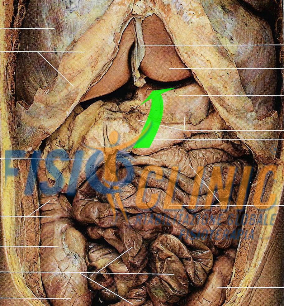 diaframma stomaco Trattamento Fisioterapia Reflusso Gastro Esofageo Ernia Iatale diaframma Centro Fisioterapia Cura Roma Rieducazione Posturale Globale Souchard Rpg