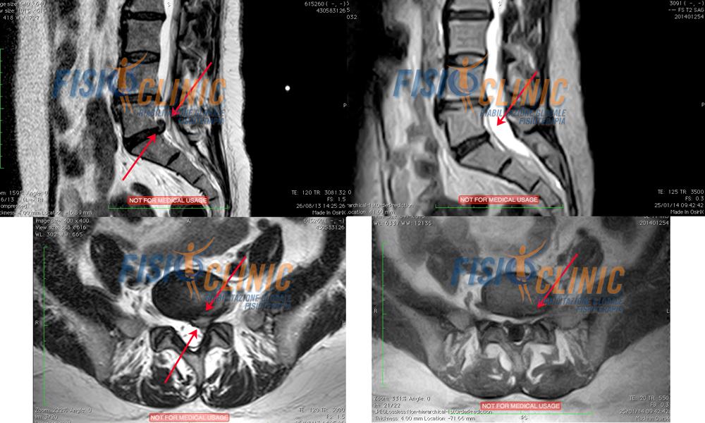 Ernia del Disco Lombare L5-S1 espulsa