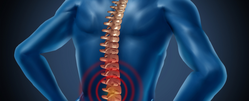 Low-Back-Pain Roma Fisioterapia